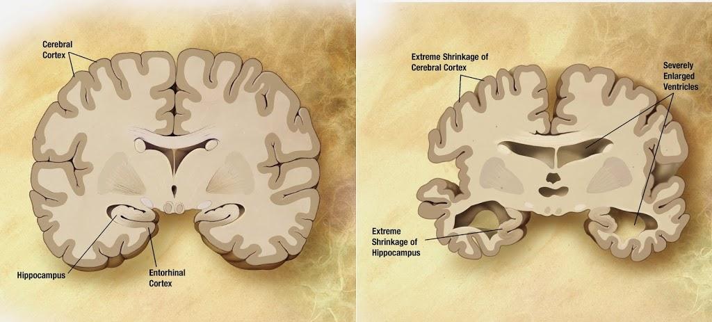 Alzheimer-s_disease_brain_comparison