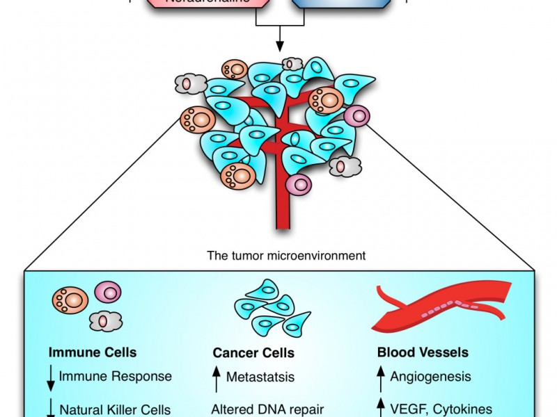 Stressoncancer-1024x942
